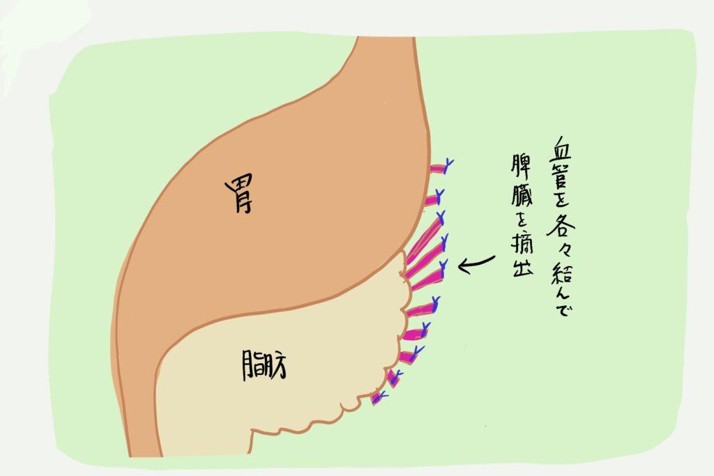 脾臓の腫瘍